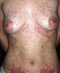 Penyakit Eksim Pada Wanita