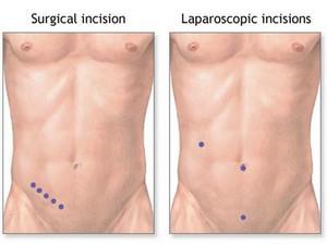 appendix pain symptoms in women | johny fit, Cephalic Vein