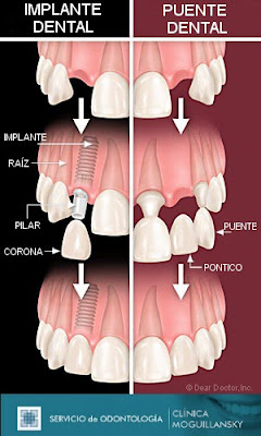 comparacion implante y puente dental