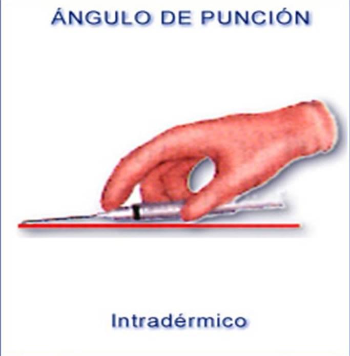 BLOG DE ENFERMERIA.: VIA DE ADMINISTRACION INTRADERMICA.