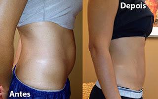 Fotos de resultados da criolipólise no abdomen
