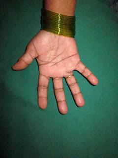 HAND TUMOR - GIANT CEL...
