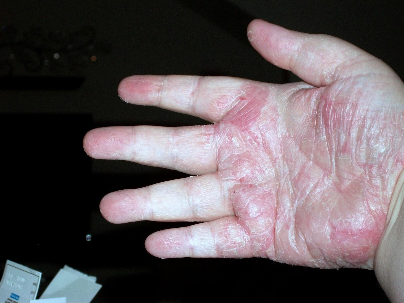 Palmar Plantar Psoriasis Natural Treatment