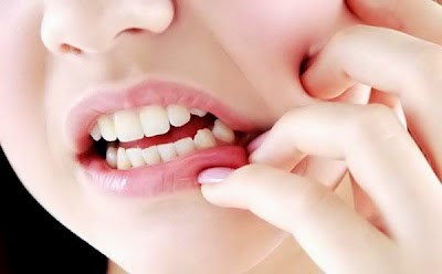 Ramuan Obat Herbal Tradisional Sakit Gigi