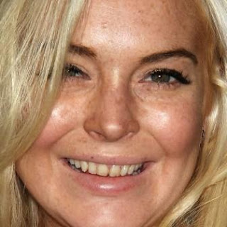 Lindsay Lohan bad teeth