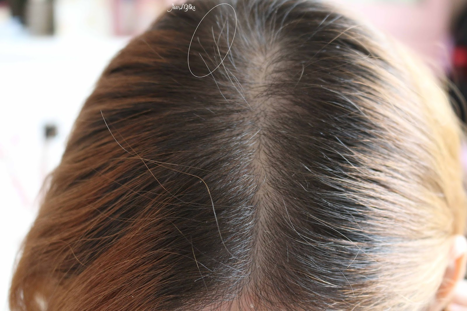 hair, hair care, hair loss, hair growth, cg210, cg 210, abbott, solusi rambut rontok, hair treatment