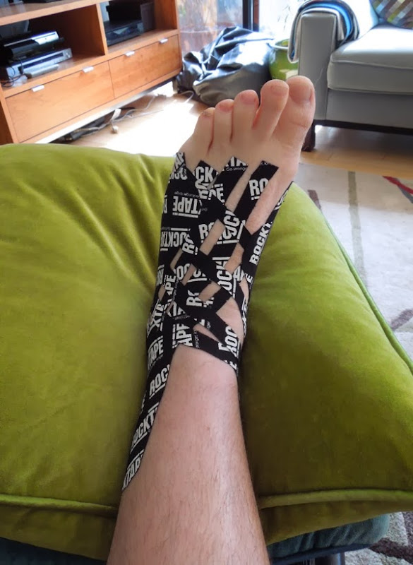 Swollen ankle strapped with tape