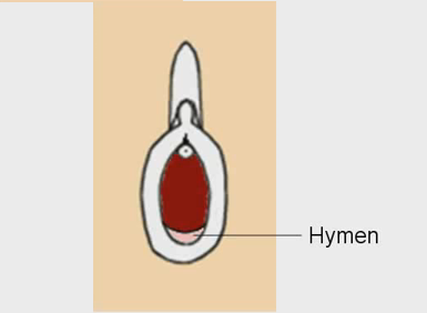 does an unbroken hymen looks like? Here are some pictures of intact ...