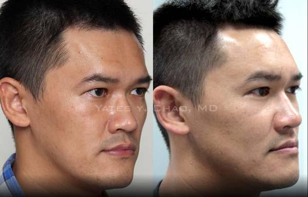 3D聚左旋乳酸男性臉部雕塑, 額頭塑形by 趙彥宇醫師  Yates Y. Chao