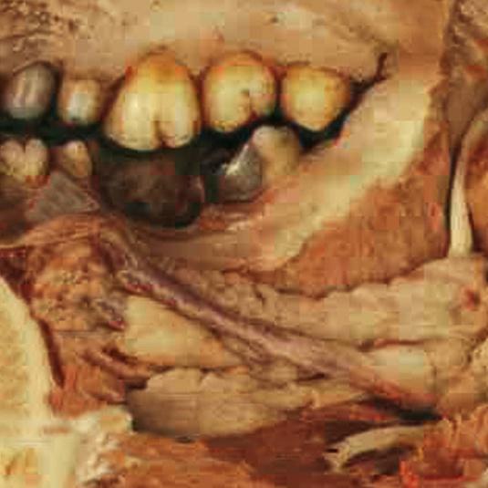 Anatomical Plastination