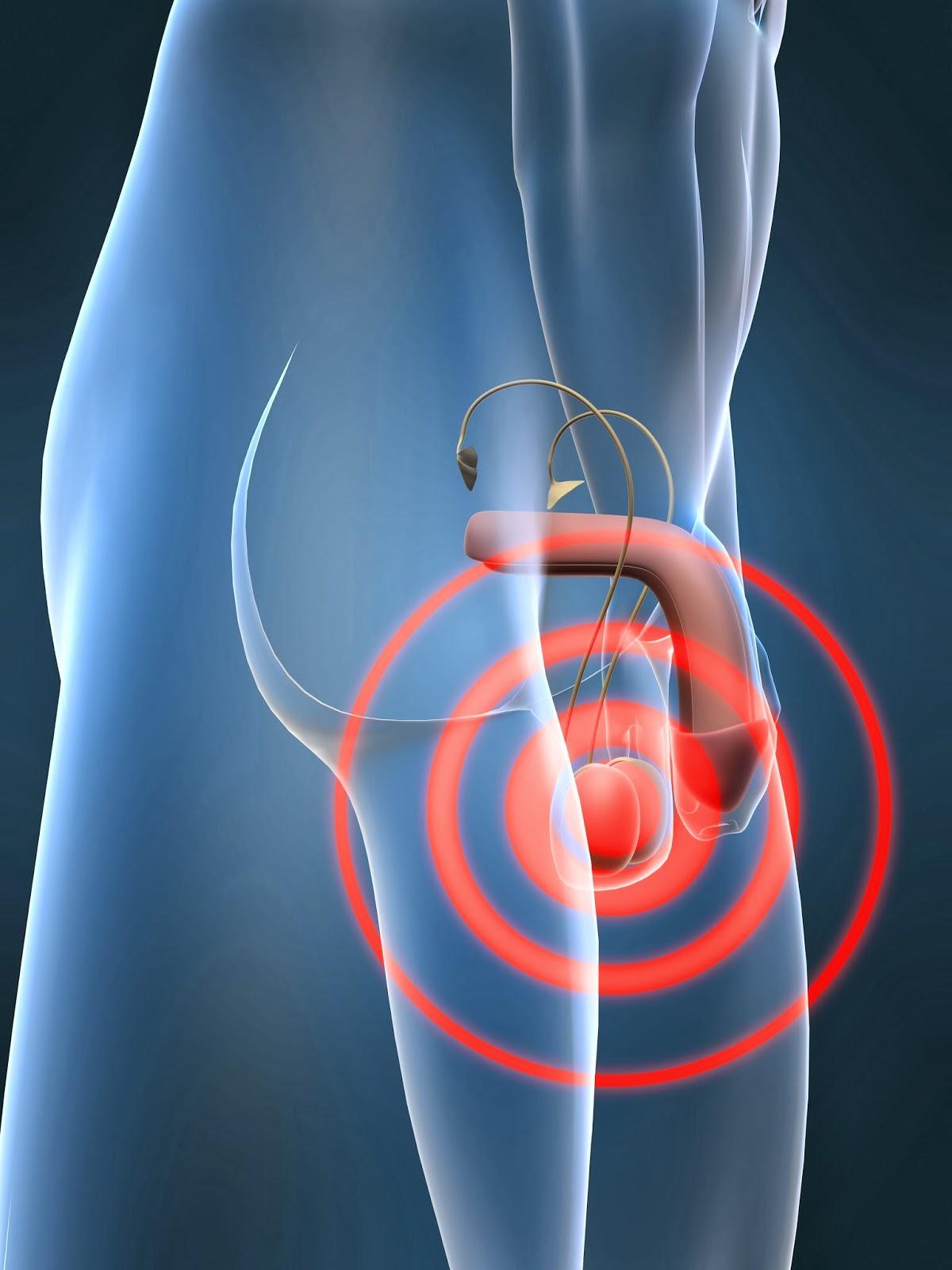 testicular torsion. testicular torsion: what every parent should know torsion