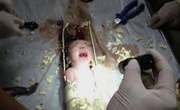 Foto Penyelamatan Bayi Toilet China
