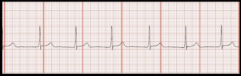 answers 1 accelerated junctional rhythm the rhythm is regular and the    Accelerated Junctional Rhythm