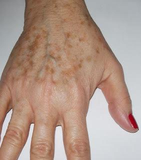 Como aclarar y eliminar las manchas en las manos ibellizima - Como sacar las manchas ...