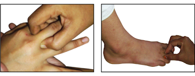 Acupressure point, Points of the Middle Finger.