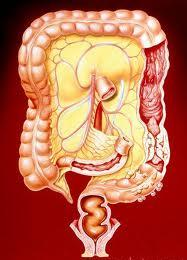 Crohn s Disease Cancer