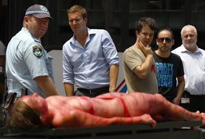 Ativista simula queimaduras na pele para promover veganismo na Austrália