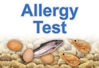 test alergi,alergi susu,Sehat Kita Semua