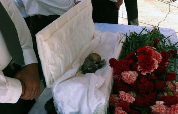 Left Eye Open Casket Pictures By abortion in open casket