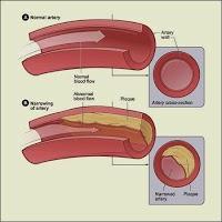 Cara alami mengobati kanker mulut rahim (serviks)