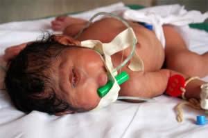 Bayi Bermata Satu