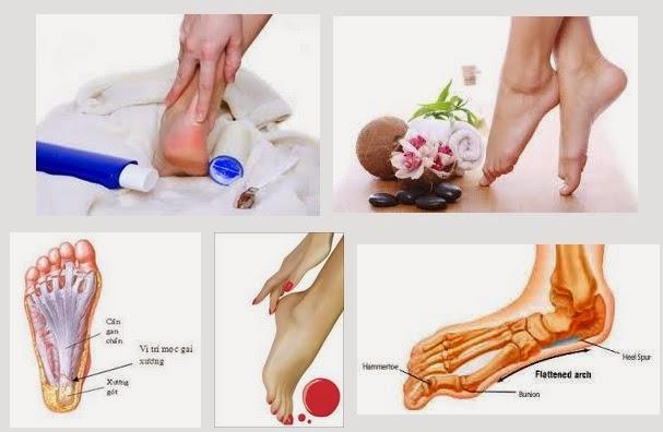 Tìm hiểu thuốc trị bệnh đau chân từ đau gót chân