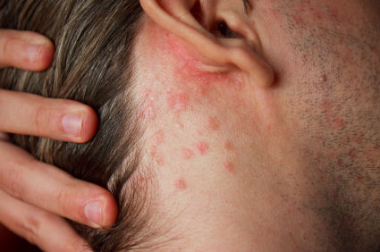 Home remedies for Skin rashes and Itching | Online bee