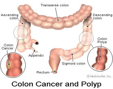 Consuming soy peptide may reduce COlon cancer metastasis