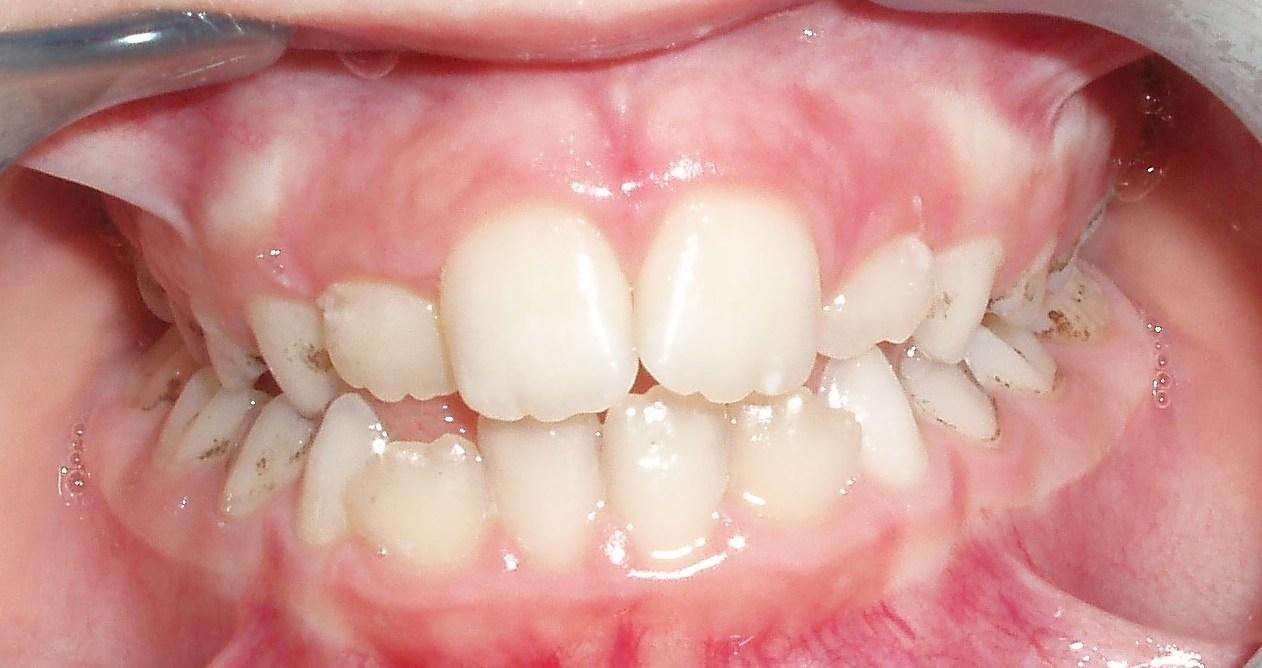 Налет на зубах у ребенка не счищается