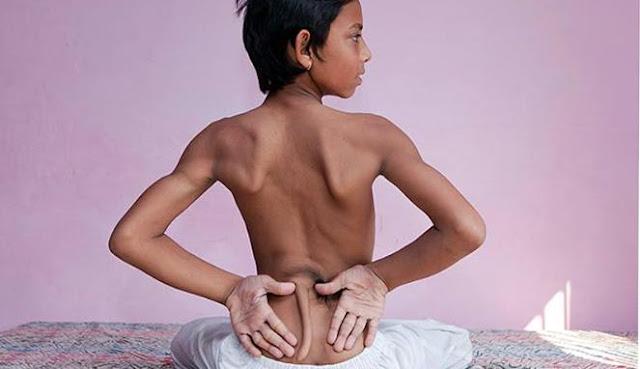 Ini Dia Arshid Khan, Bocah Berekor dari India