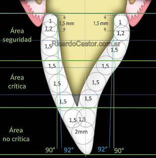 preparacion dentaria para corona circonio ceramica dental