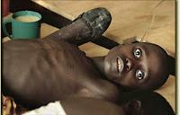 Penyakit Kolera gambar Penyakit Kolera