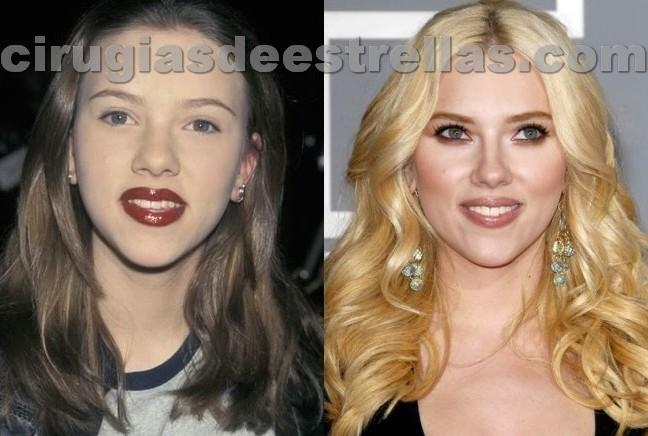 Está Scarlett Johansson operada?