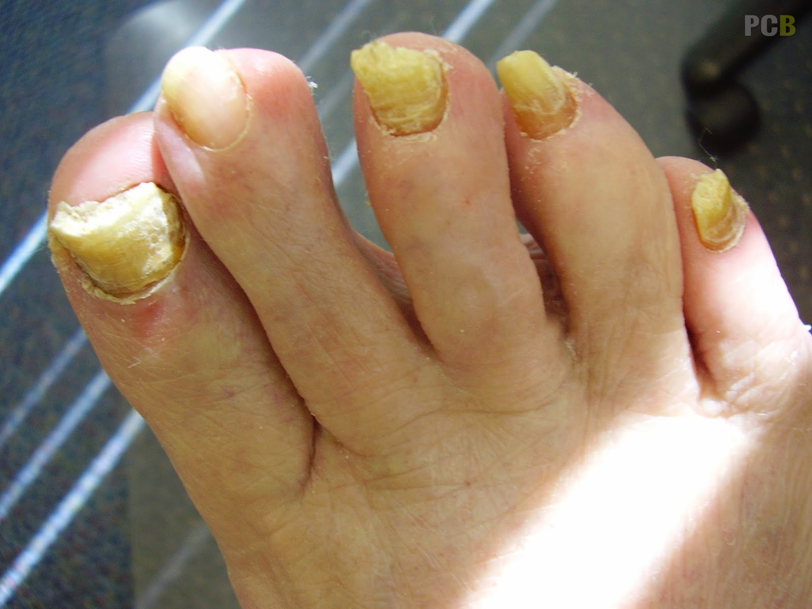 8 Health Risks Your Fingernails Tells You That You Didn\'t Know ...
