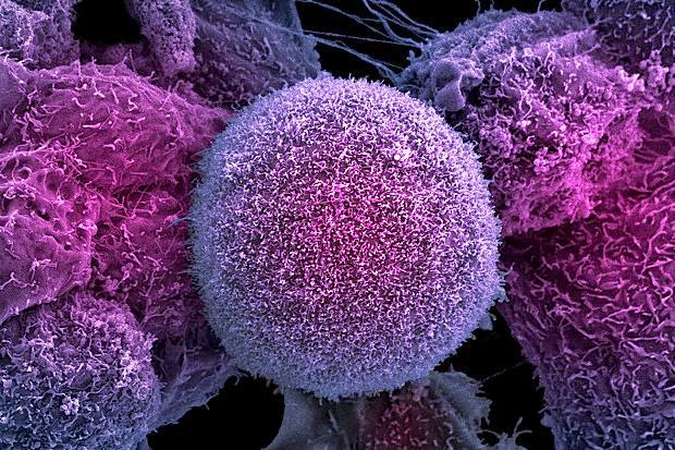 New Therapeutic Target For Prostate Cancer Discovered
