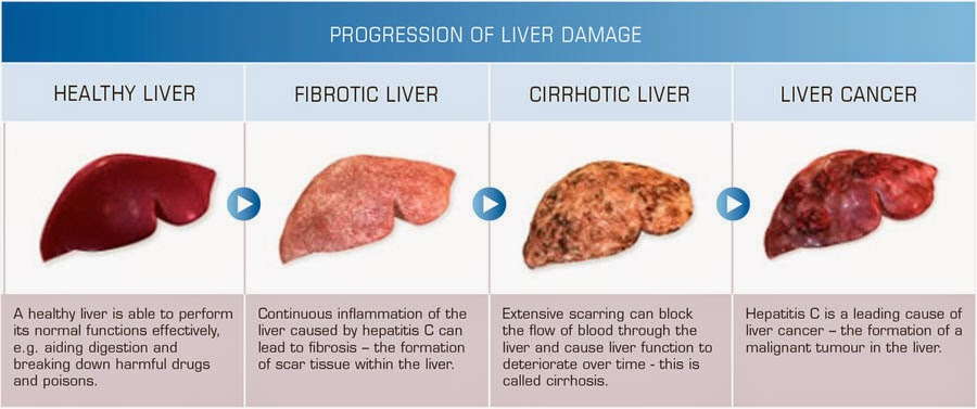 Health Care Health Articles Beauty Tips Liver Problem Read