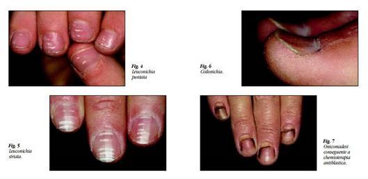 4 foto con vari alterazioni di unghia affette da leuconochia