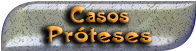 CASOS PRÓTESES