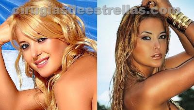 Jessica Cirio antes y despues