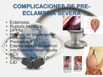 Preeclampsia/Eclampsia en el embarazo