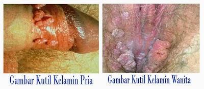 Contoh penyakit kutil kelamin