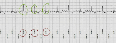 Pacemaker Sensing and Electro Magnetic Interference