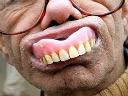 99 dollar dentures springfield mo