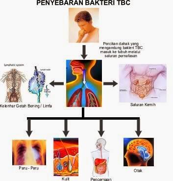 Cara penyebaran penyakit TBC