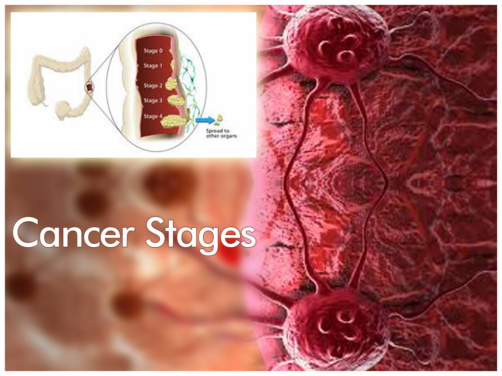 cancer ppt, cancer slides, cancer symptoms, breast cancer, lung, Powerpoint templates