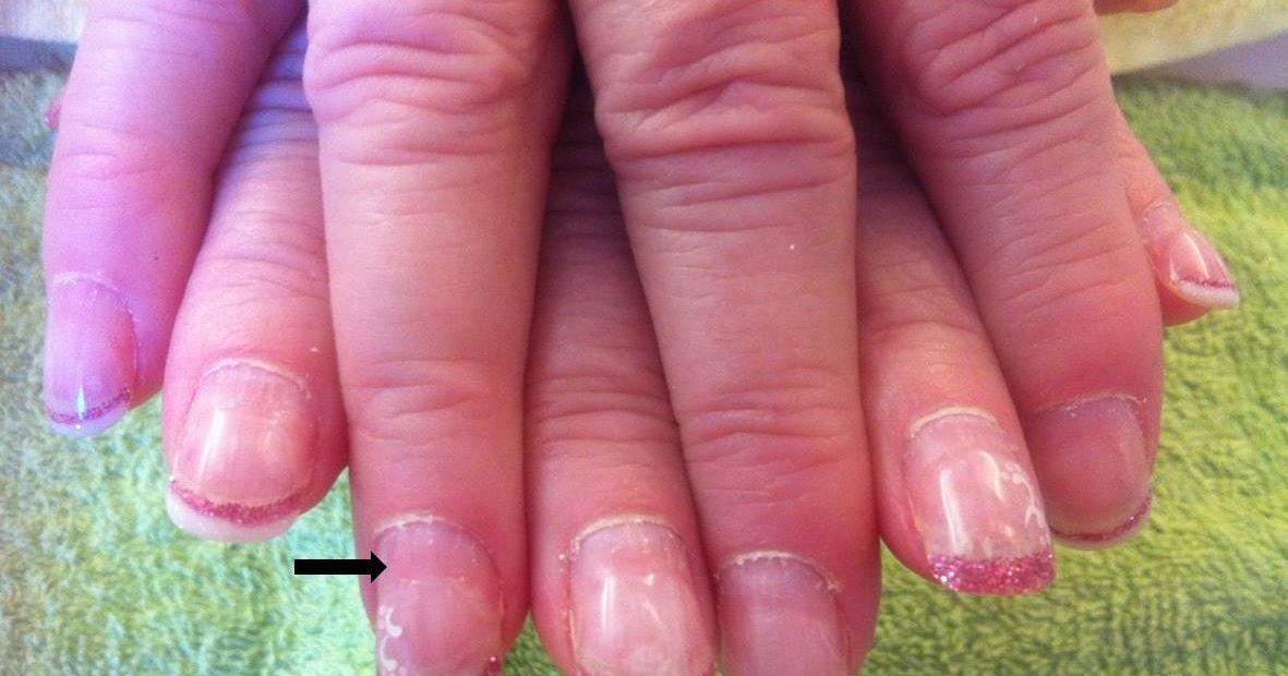 förstörda naglar efter nagelförlängning