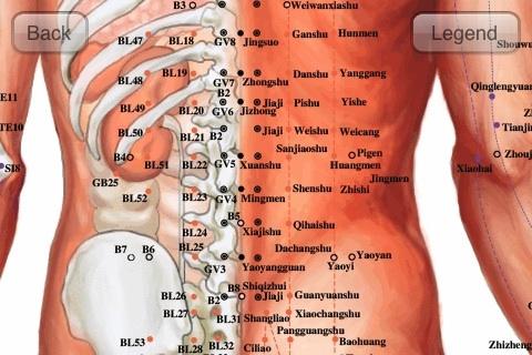 El corsé ortopédico al departamento de pecho y lumbar