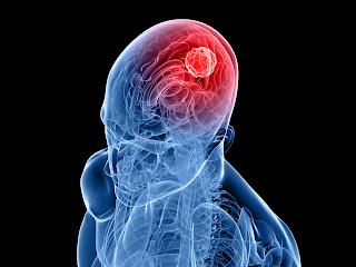 Apa Penyebab Kanker Otak ?