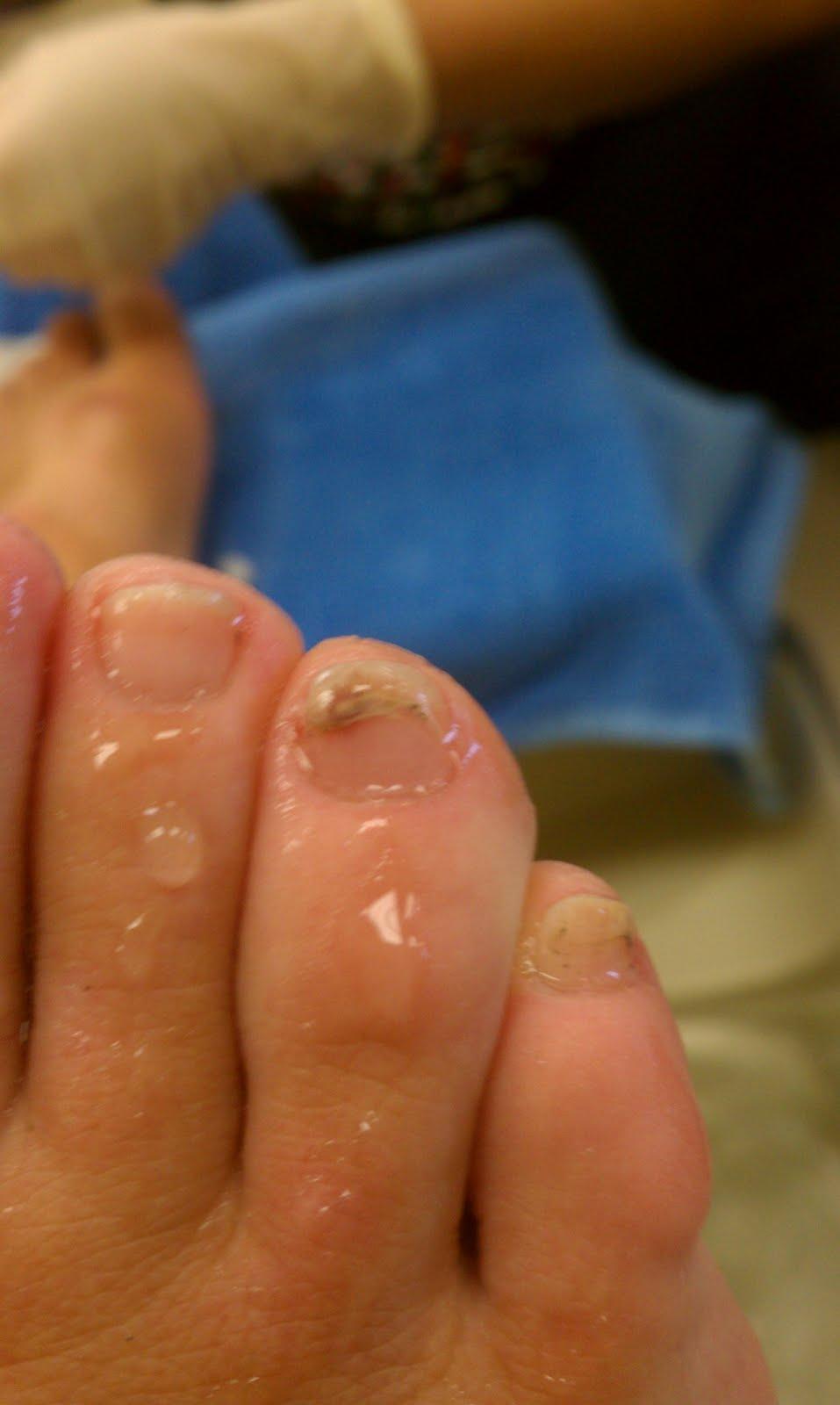 split toenail #11