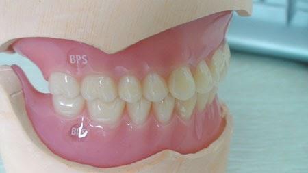 http://www.dentistinchennai.com/bps-denture.php